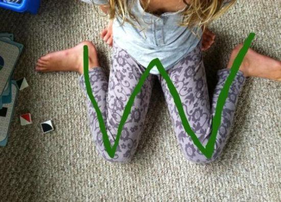 """专家:""""W""""坐姿影响幼儿骨骼发展"""