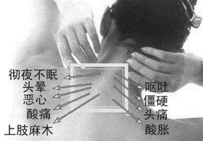 专药专治颈椎病 年老不怕脖子瘫