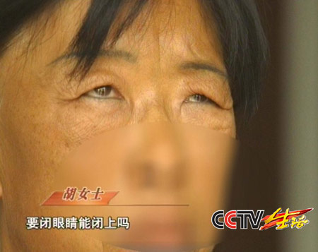 中年妇女做美容手术后面部表情动作完全消失