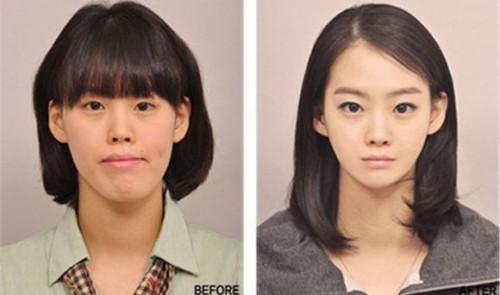 韩国每天造6000美女 揭秘整容前后对比照图片