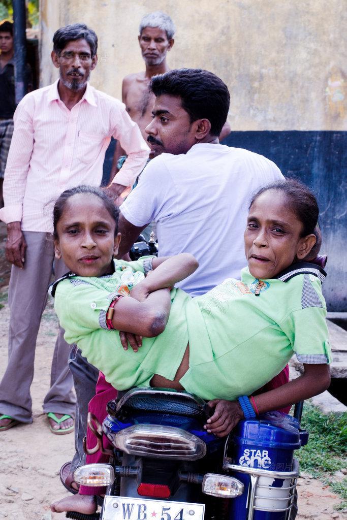 印度45岁连体双胞胎姐妹终获真爱图片