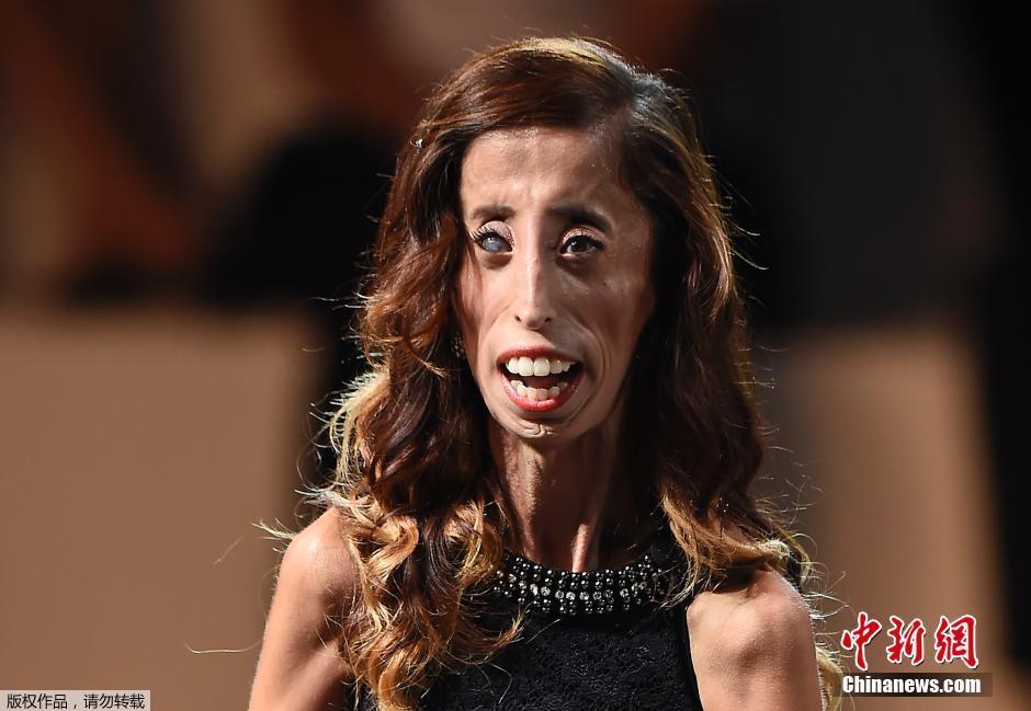 2014最牛kc全景正拍-维拉斯克兹(Lizzie Velasquez)现年26岁,因患有马凡氏综合症(先