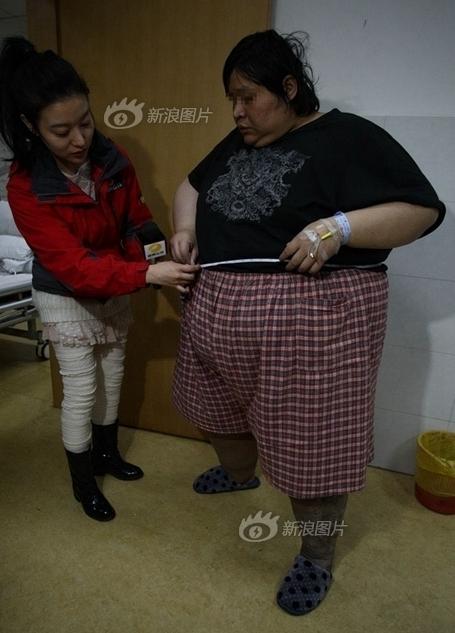 长沙35岁男子体重400多斤致生活艰难
