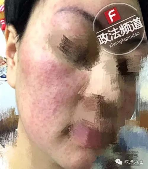 吓人 长沙女孩用某护肤品后烂脸毁容