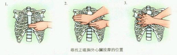 胸外按摩的正确位置-世界急救日 图解成人心肺复苏术