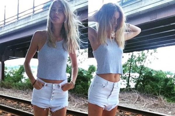 澳洲美女太瘦被网友吐槽