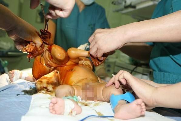 """刚生出的胖小孩-脑""""婴儿,这个宝宝是个典型的""""大胖小子"""".图为医生做分离手术"""