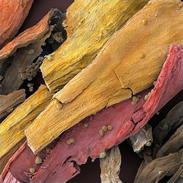 显微镜下食物惊人细节:西兰花似郁金香
