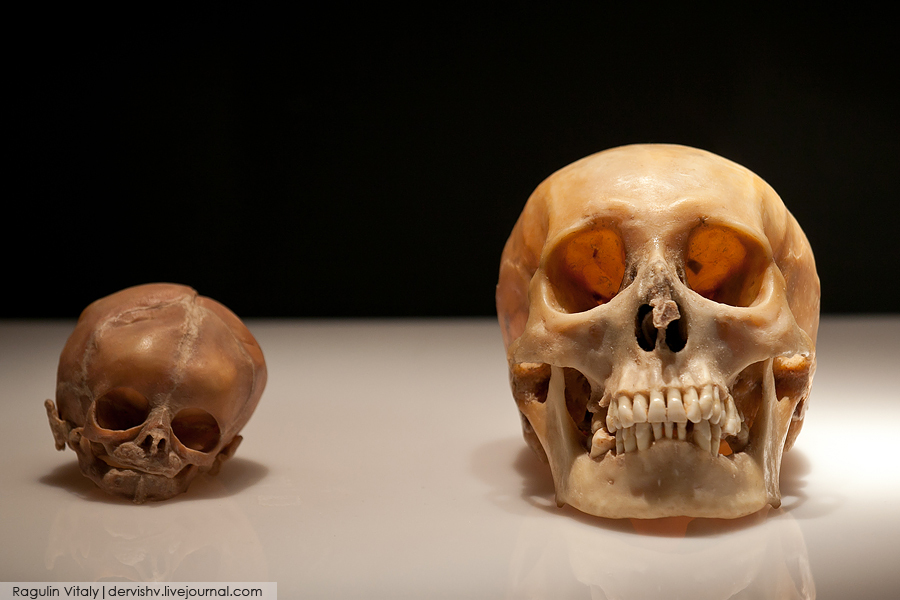 婴儿头骨解剖结构图