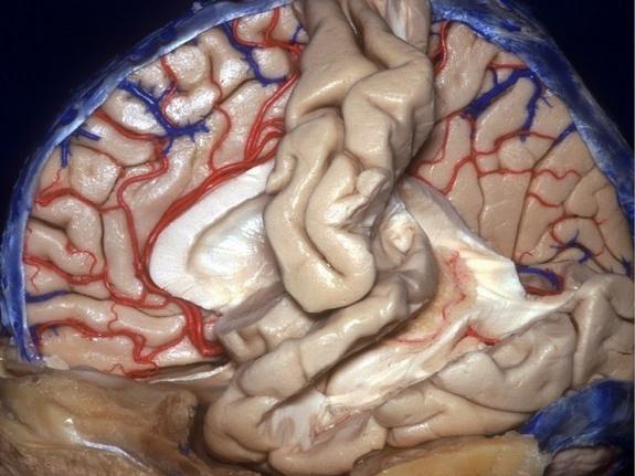 人类大脑三维解剖图:血管清晰可见(组图); 大脑解剖视屏_大脑解剖图谱