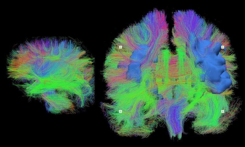 比天空更广阔:揭秘大脑如何复杂工作