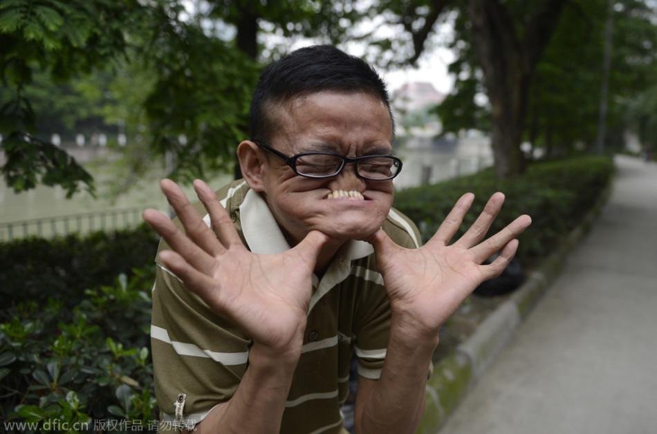 """川省成都市,""""烂脸王""""汤术全表演嘴巴吃鼻子吸引市民围观.当图片"""