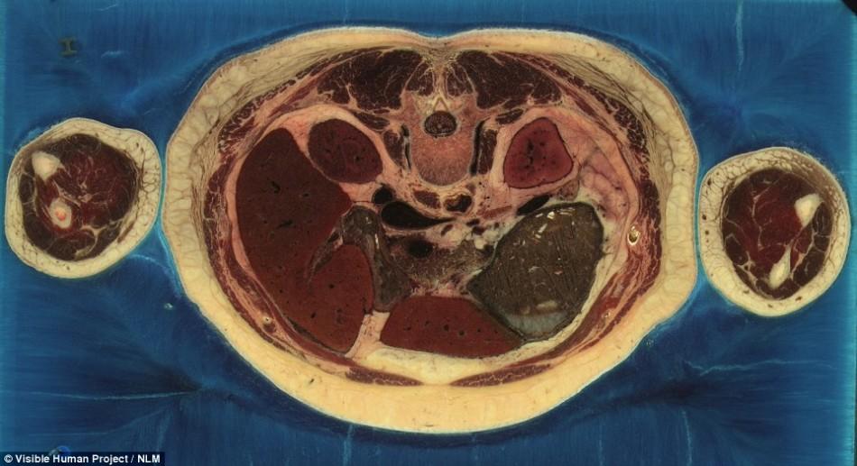 世界最详细人体图像:5000个切面扫描成像
