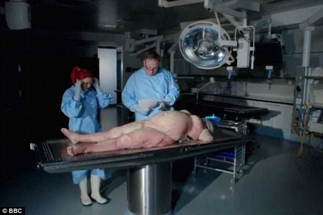你还敢变胖吗!肥胖尸体解剖揭示超重影响