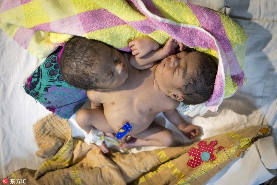 孟加拉国夫妻生连体婴遗弃医院 婴儿有4条手臂