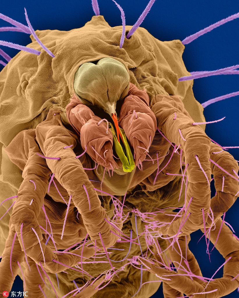 电子显微照揭示尘螨 无处不在的可怕生物