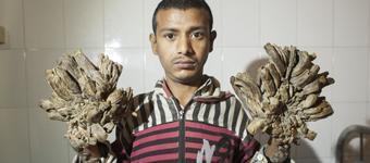 孟加拉国男子患怪病 手脚增生如树根