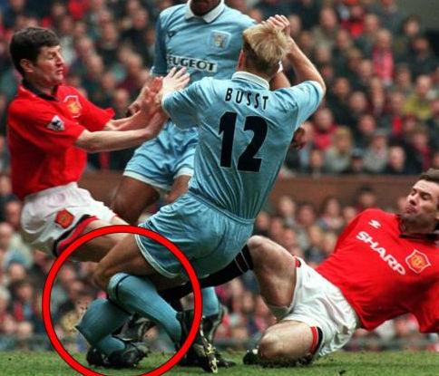 图文-英格兰足坛最惨烈断腿照这还是人的腿吗