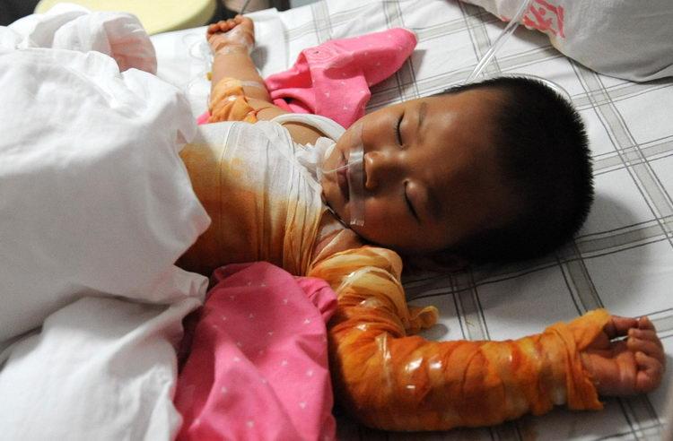 懊悔的图片_图文:三龄童掉进沸水澡盆被烫伤_新闻中心_新浪网